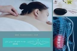 فواید درمان سیاتیک با طب سوزنی