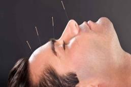 درمان عوارض کرونا با طب سوزنی